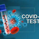 एन्टिजेन विधिबाट बीस मिनेटमै कोरोना परीक्षण
